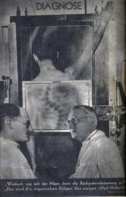 "JJohn Heartfield, Jak to możliwe, że ten mężczyzna ma tak skrzywiony kręgosłup? To naturalny rezultat ciągłego heilowania / Diagnosis: – What caused the deformation of the spine? – They are organic consequences of the interminable ""Heil Hitler!"", 1935"